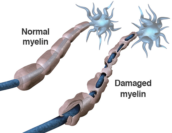 Comarison of normal myelin and damaged myelin